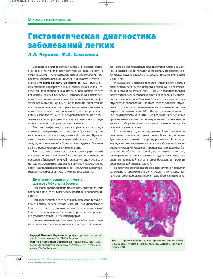 Гистологическая диагностика заболеваний легких тема научной  Показать еще