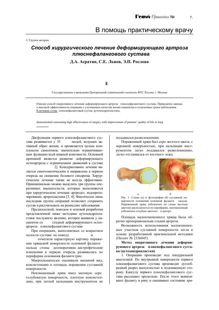 Симптомы и подходы к классификации болезней суставов ног