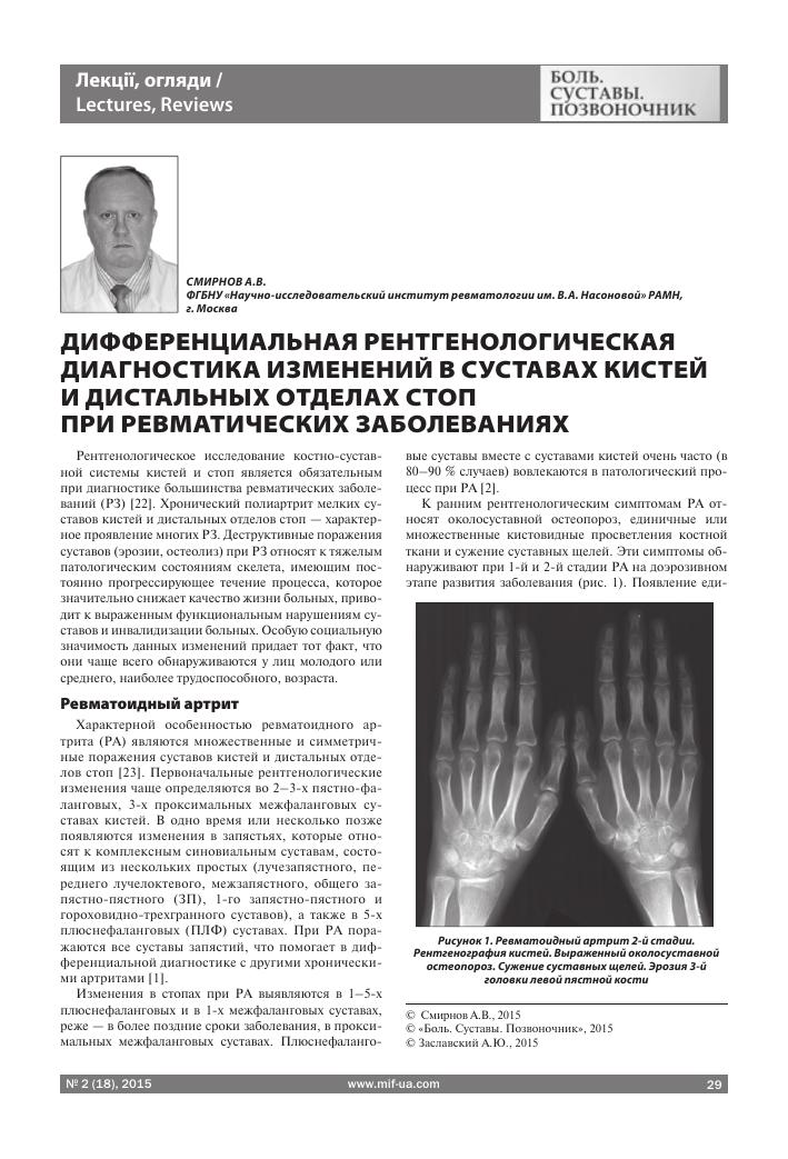 Дифференциальная рентгенологическая диагностика поражения суставов кисти при ревматически бурсит локтевого сустава какие антибиотики